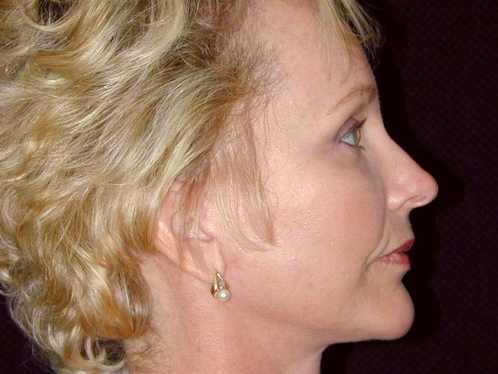 Chin Augmentation Gallery - Patient 39191374 - Image 6