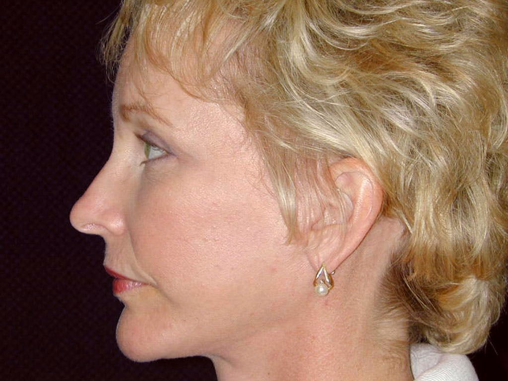 Chin Augmentation Gallery - Patient 39191374 - Image 8
