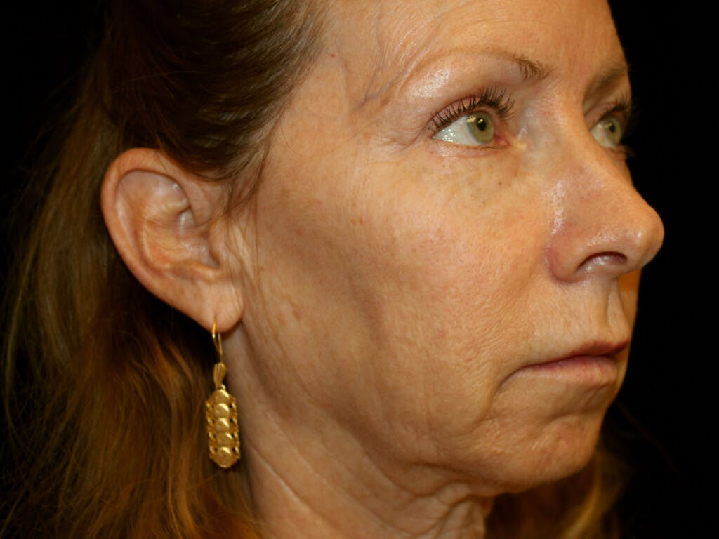 Eyelid Surgery Gallery - Patient 39191381 - Image 3
