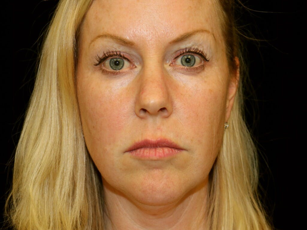 Chin Augmentation Gallery - Patient 39191386 - Image 1
