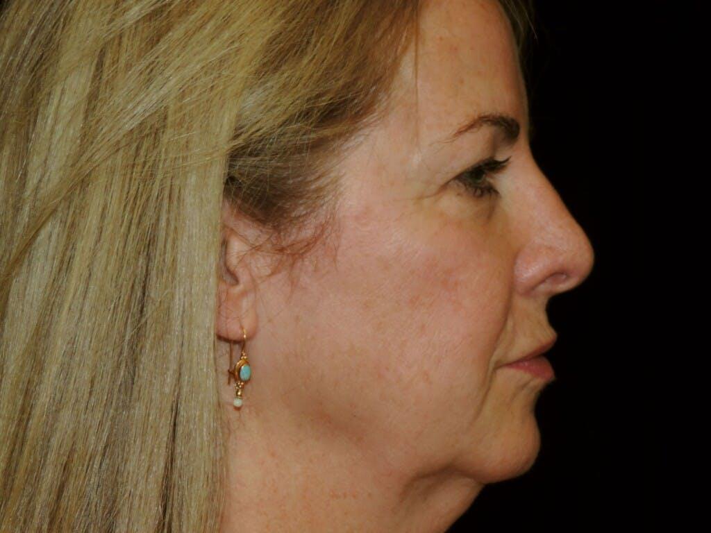 Facelift Gallery - Patient 39191380 - Image 5