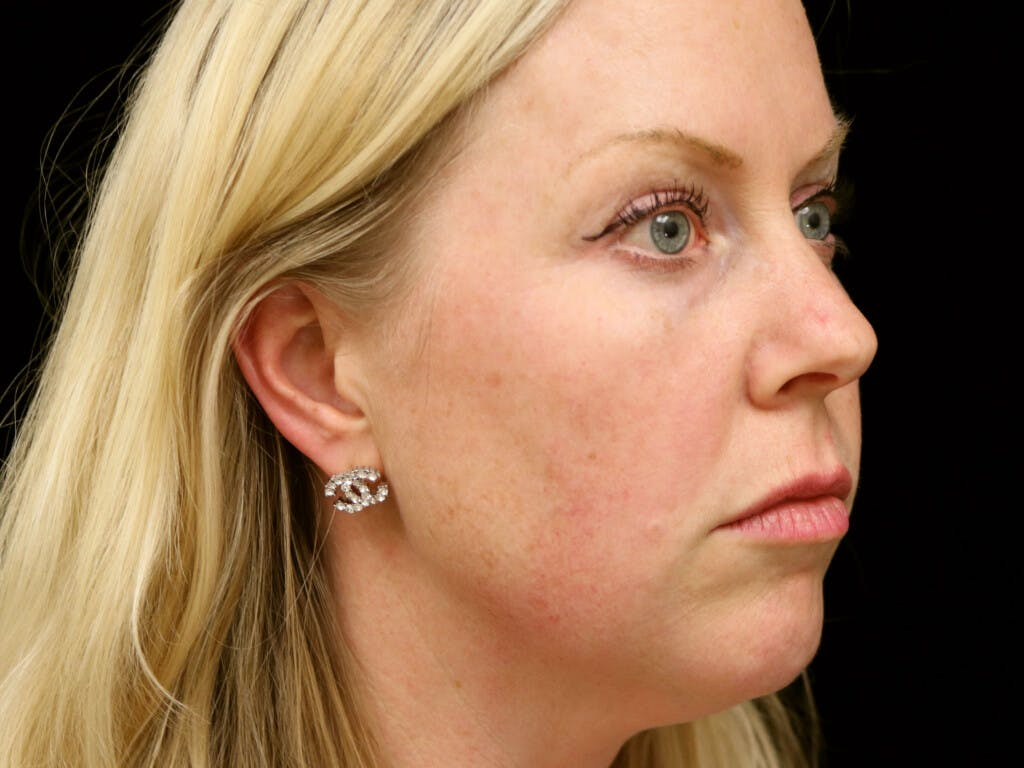 Chin Augmentation Gallery - Patient 39191386 - Image 3