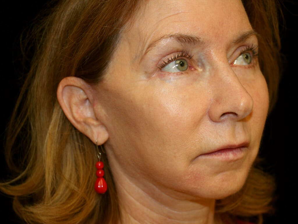 Eyelid Surgery Gallery - Patient 39191381 - Image 4