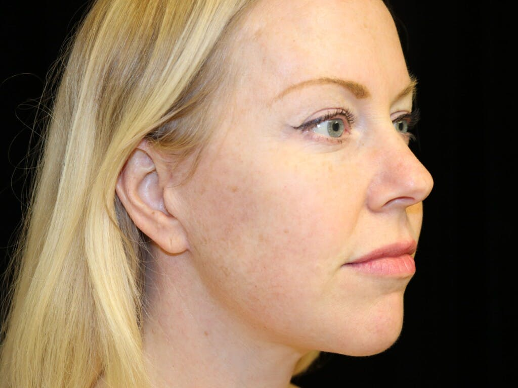 Chin Augmentation Gallery - Patient 39191386 - Image 4