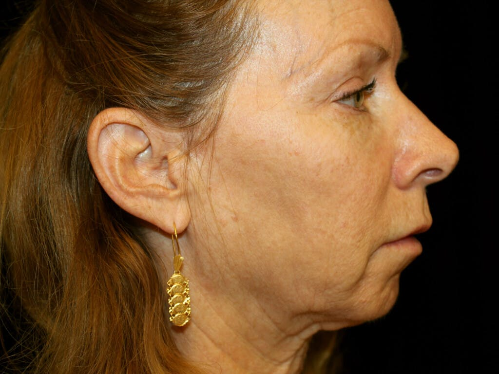 Eyelid Surgery Gallery - Patient 39191381 - Image 5