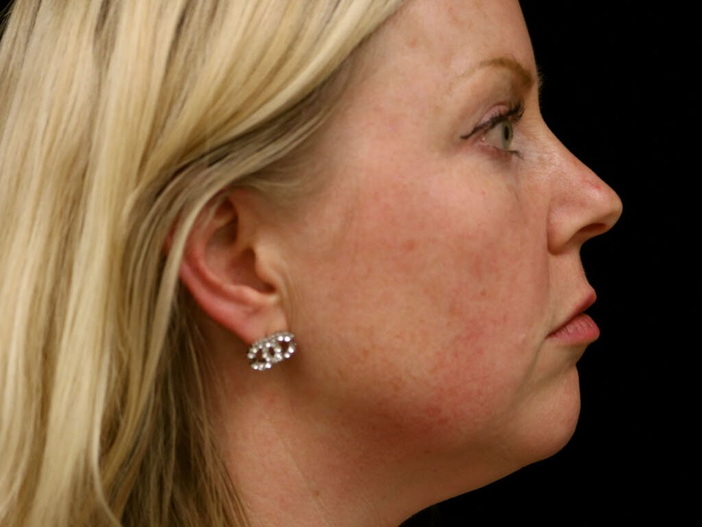 Chin Augmentation Gallery - Patient 39191386 - Image 5