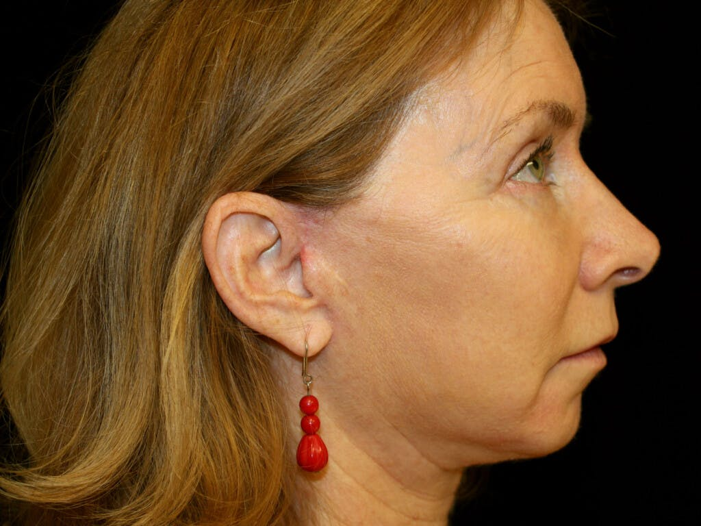 Eyelid Surgery Gallery - Patient 39191381 - Image 6