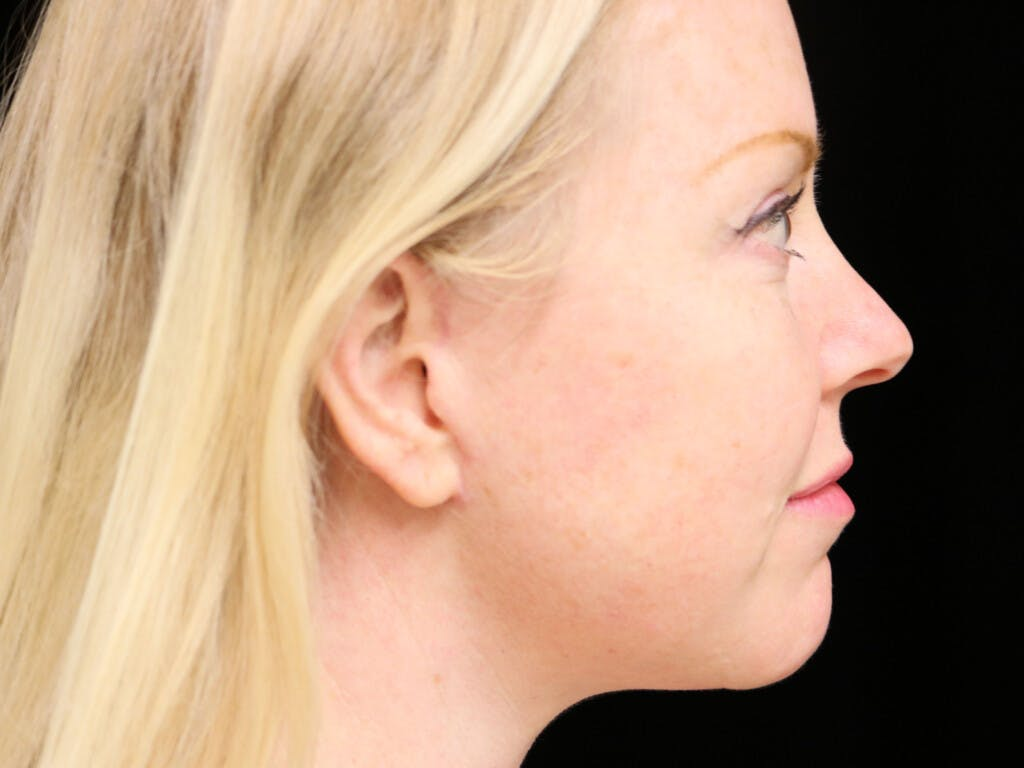 Chin Augmentation Gallery - Patient 39191386 - Image 6
