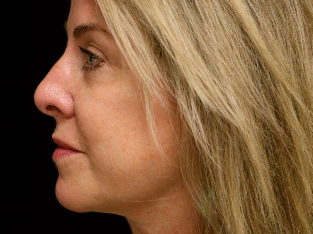 Facelift Gallery - Patient 39191380 - Image 10