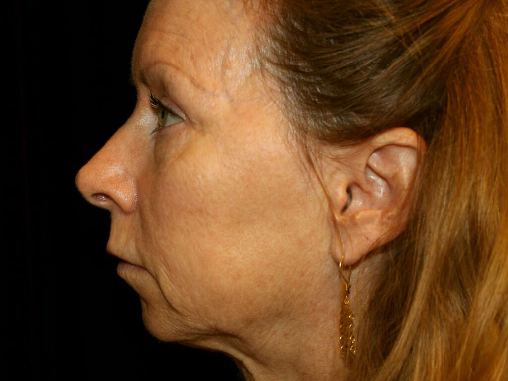 Eyelid Surgery Gallery - Patient 39191381 - Image 7