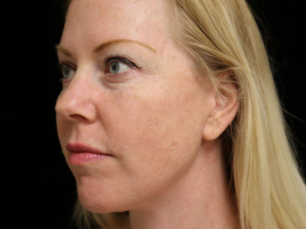 Chin Augmentation Gallery - Patient 39191386 - Image 8