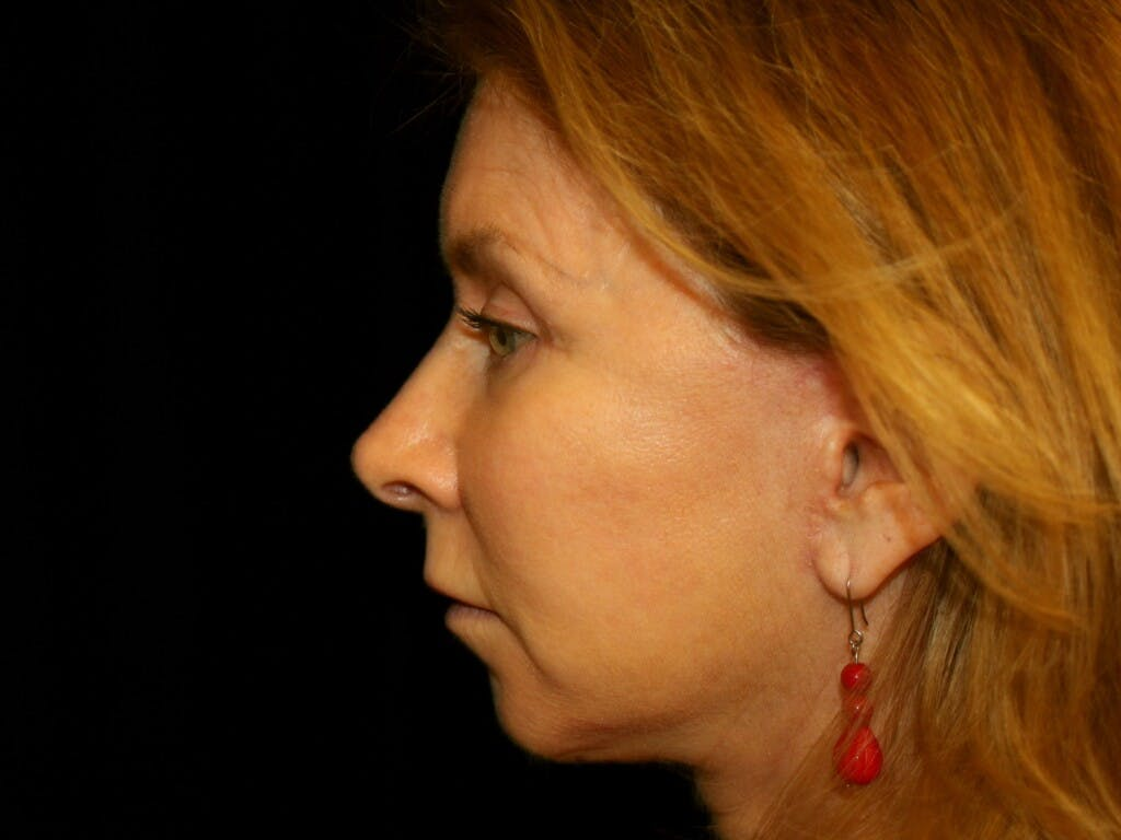 Eyelid Surgery Gallery - Patient 39191381 - Image 8