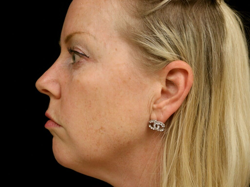 Chin Augmentation Gallery - Patient 39191386 - Image 9