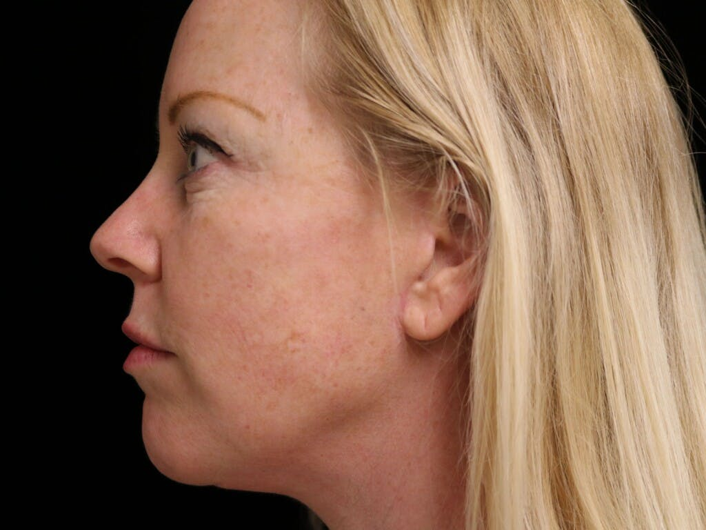 Chin Augmentation Gallery - Patient 39191386 - Image 10