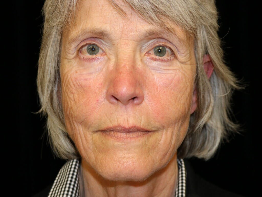 Facelift Gallery - Patient 39199819 - Image 1