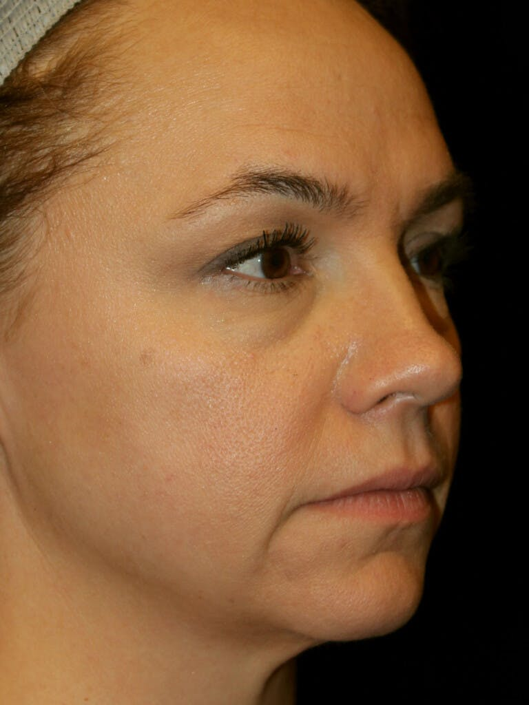 Eyelid Surgery Gallery - Patient 39191393 - Image 1