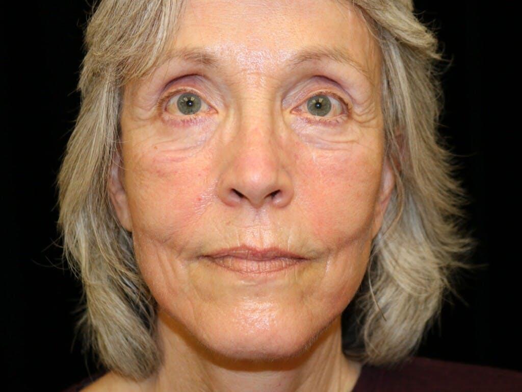 Facelift Gallery - Patient 39199819 - Image 2