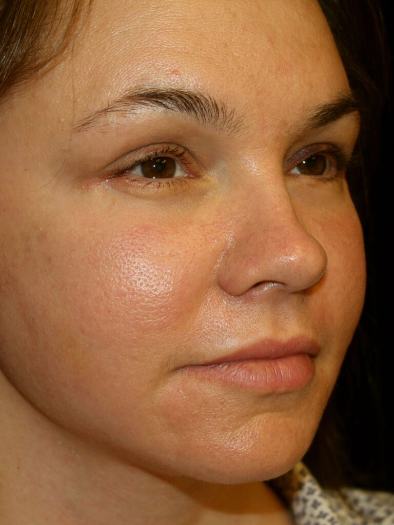 Eyelid Surgery Gallery - Patient 39191393 - Image 2