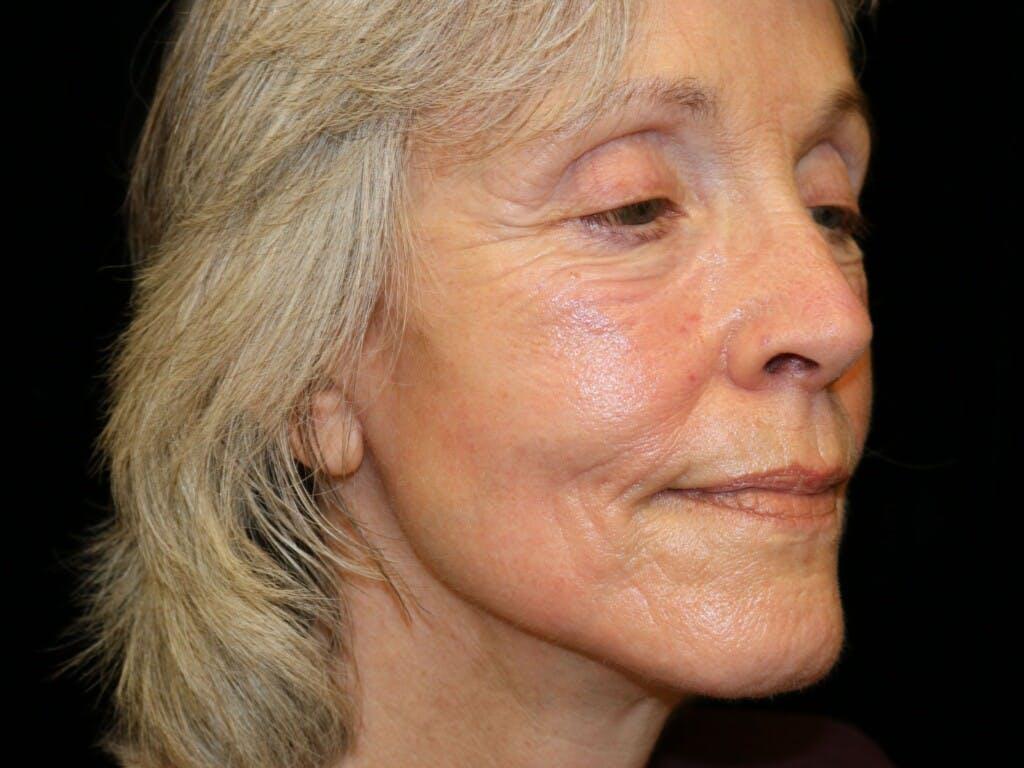 Facelift Gallery - Patient 39199819 - Image 4