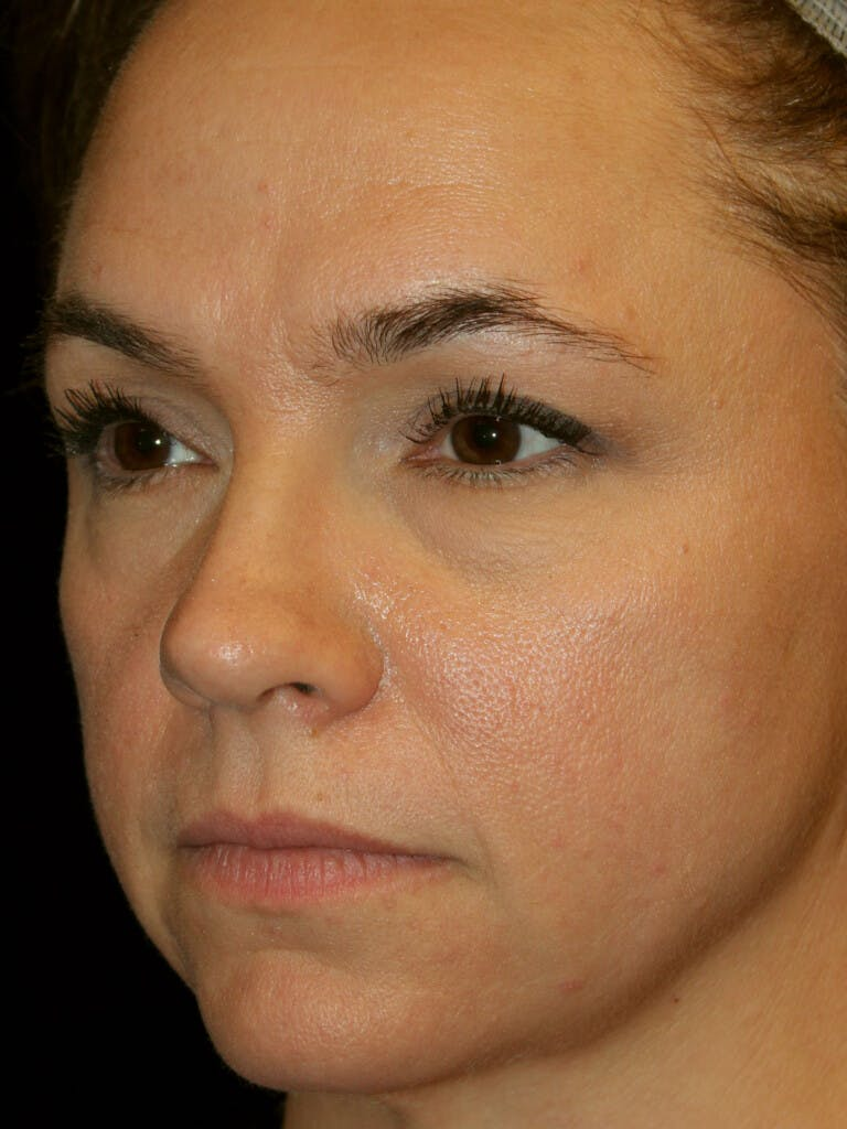 Eyelid Surgery Gallery - Patient 39191393 - Image 3