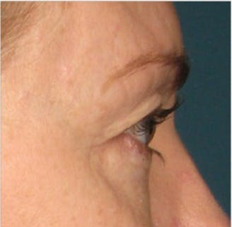 Ultherapy Gallery - Patient 39191392 - Image 1