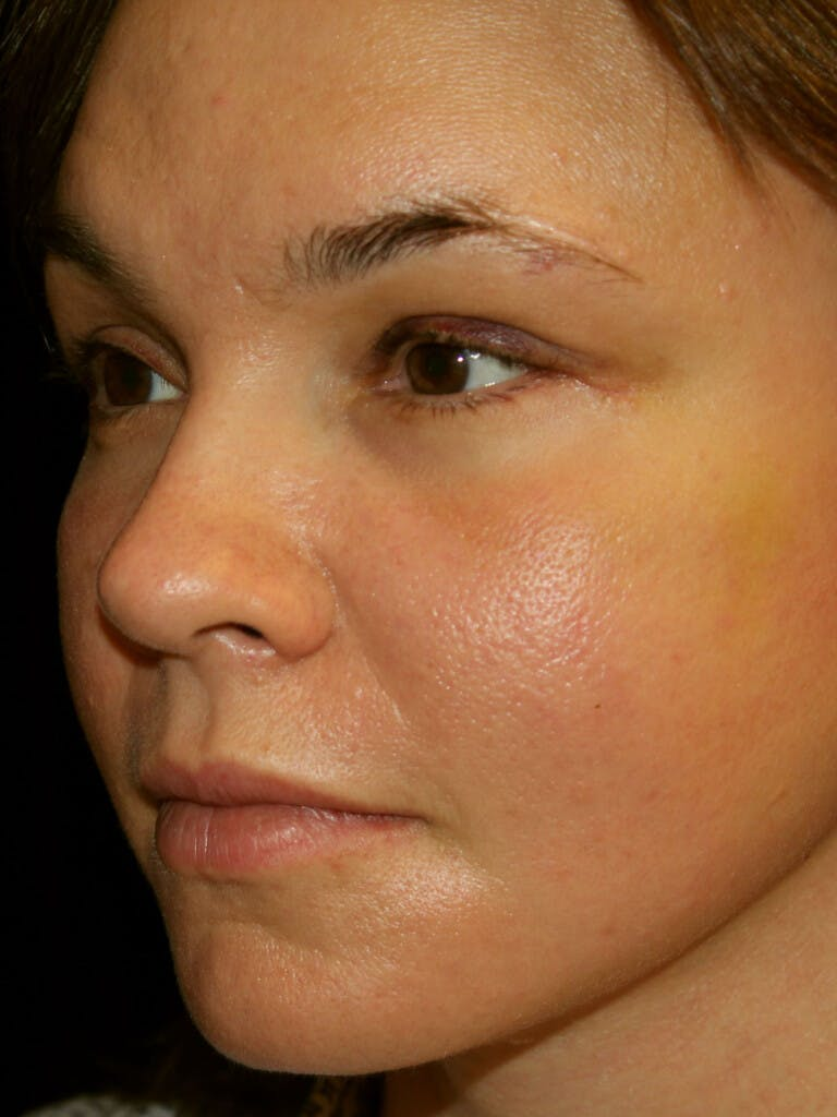 Eyelid Surgery Gallery - Patient 39191393 - Image 4