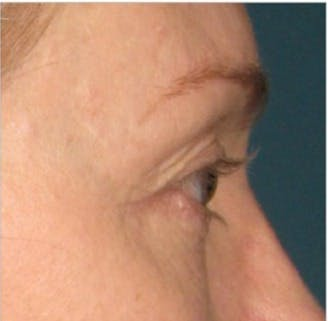 Ultherapy Gallery - Patient 39191392 - Image 2