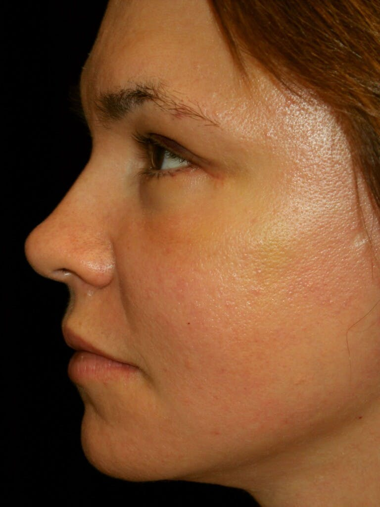 Eyelid Surgery Gallery - Patient 39191393 - Image 6