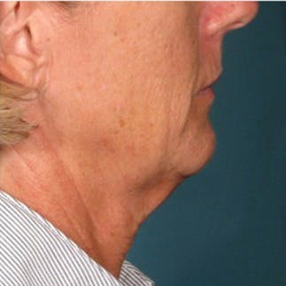 Ultherapy Gallery - Patient 39191694 - Image 1