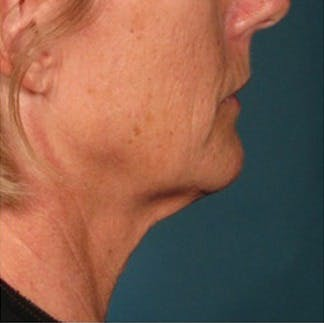 Ultherapy Gallery - Patient 39191694 - Image 2