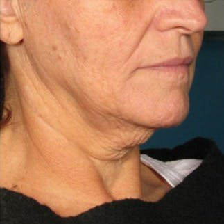 Ultherapy Gallery - Patient 39199820 - Image 1