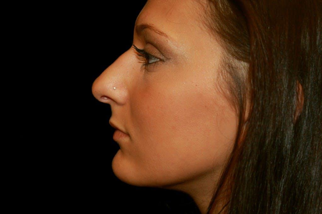 Rhinoplasty Gallery - Patient 39199821 - Image 5