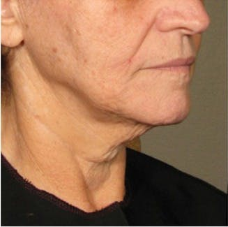 Ultherapy Gallery - Patient 39199820 - Image 2
