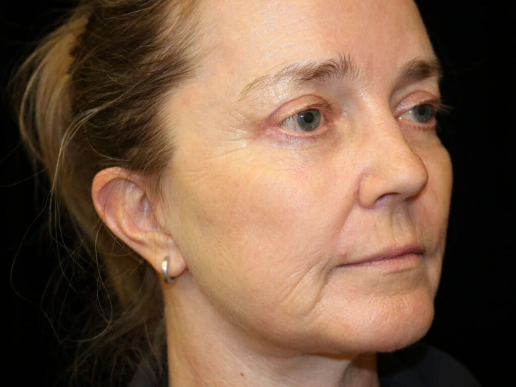 Eyelid Surgery Gallery - Patient 39199829 - Image 4
