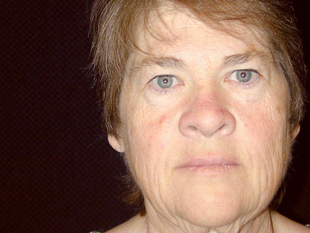 Facelift Gallery - Patient 39199831 - Image 1