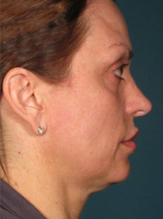Ultherapy Gallery - Patient 39199822 - Image 1