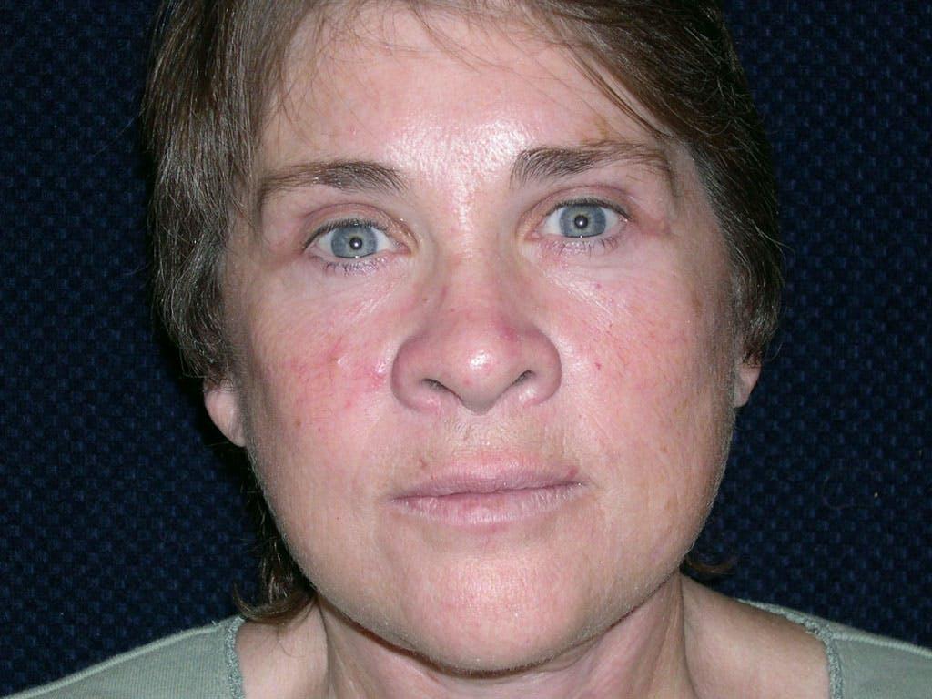 Facelift Gallery - Patient 39199831 - Image 2
