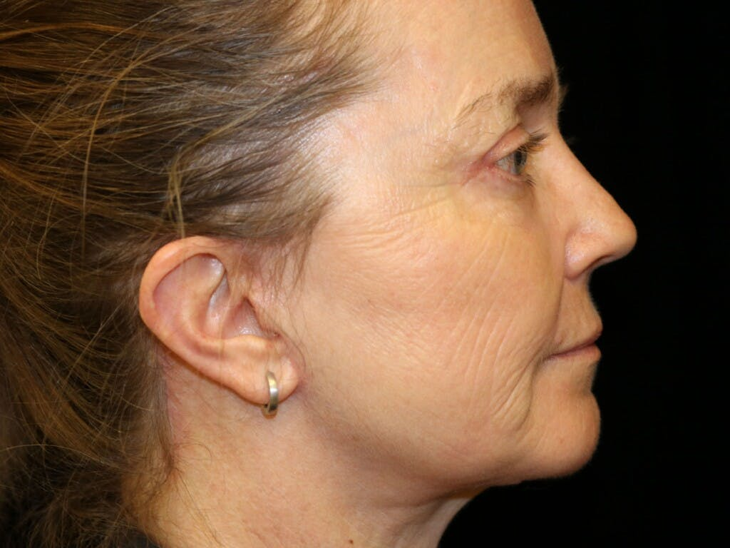 Eyelid Surgery Gallery - Patient 39199829 - Image 6
