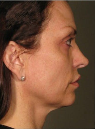 Ultherapy Gallery - Patient 39199822 - Image 2