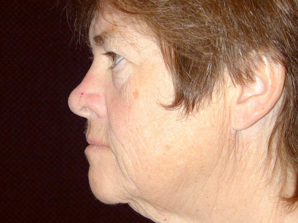 Facelift Gallery - Patient 39199831 - Image 3