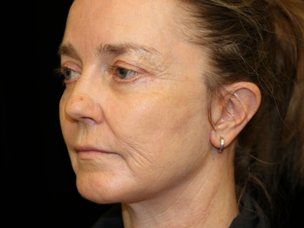 Eyelid Surgery Gallery - Patient 39199829 - Image 8