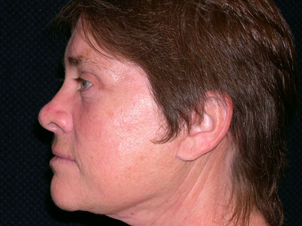 Facelift Gallery - Patient 39199831 - Image 4