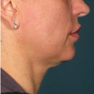 Ultherapy Gallery - Patient 39199824 - Image 1