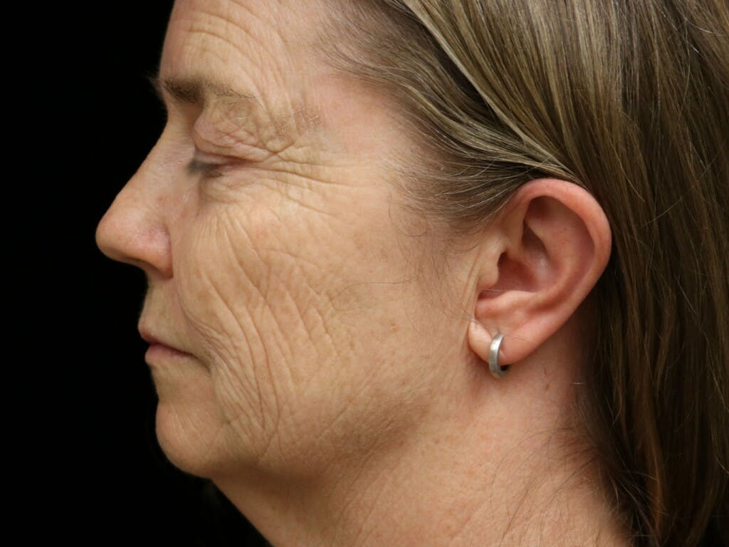 Eyelid Surgery Gallery - Patient 39199829 - Image 9