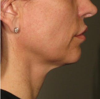 Ultherapy Gallery - Patient 39199824 - Image 2