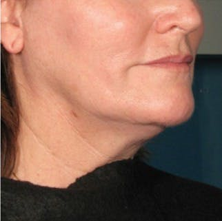 Ultherapy Gallery - Patient 39199832 - Image 1