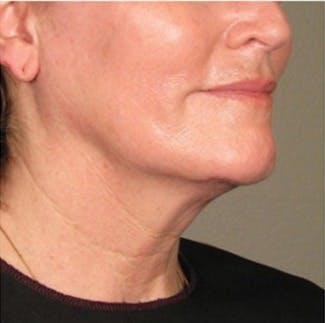 Ultherapy Gallery - Patient 39199832 - Image 2