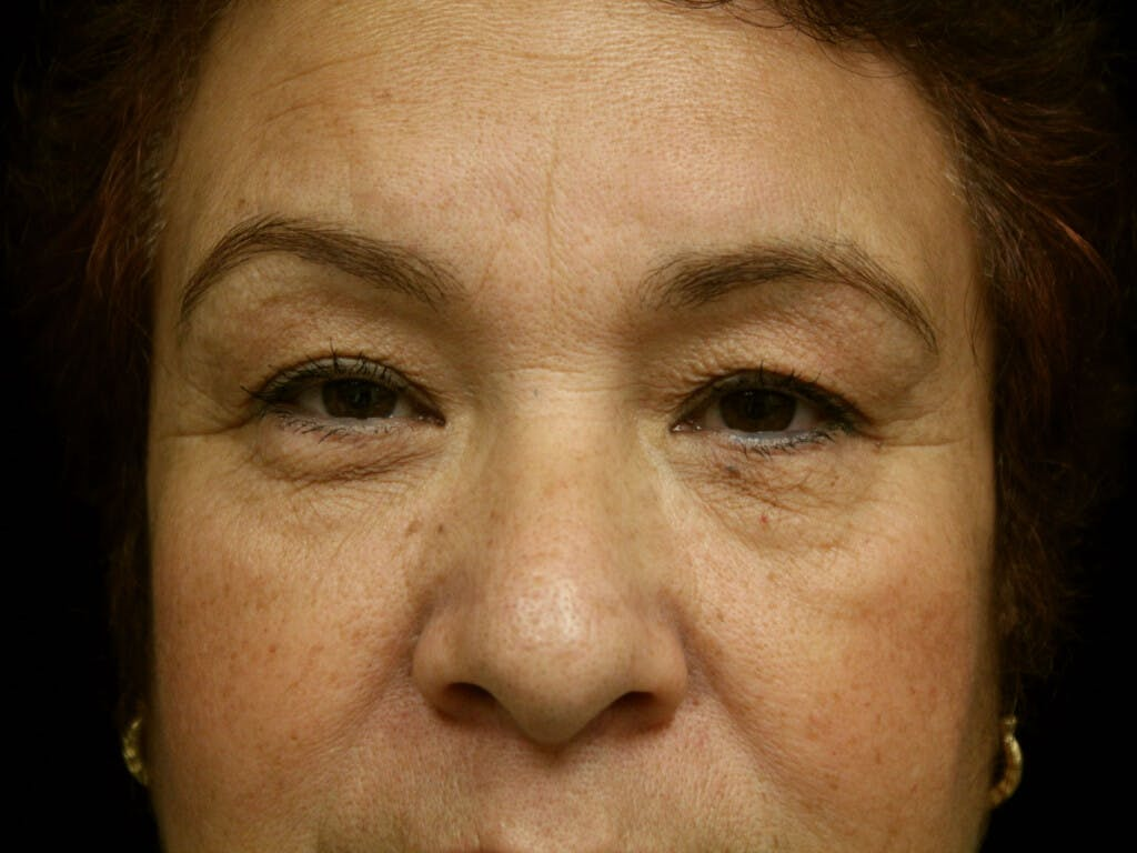 Eyelid Surgery Gallery - Patient 39199840 - Image 1