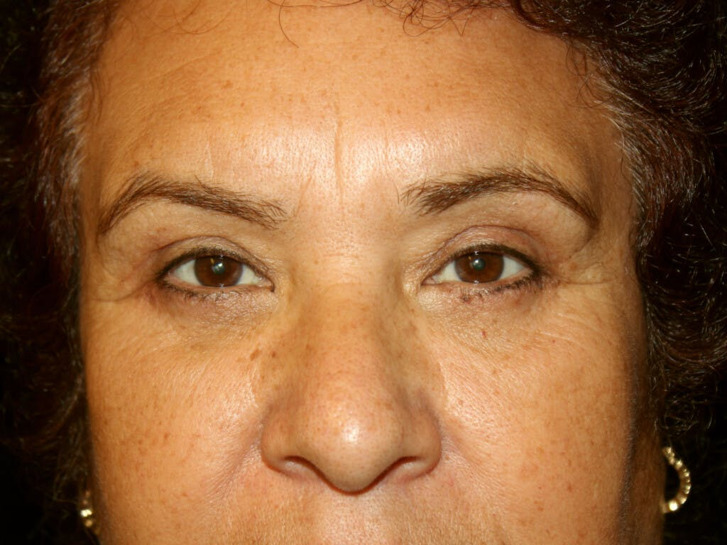 Eyelid Surgery Gallery - Patient 39199840 - Image 2