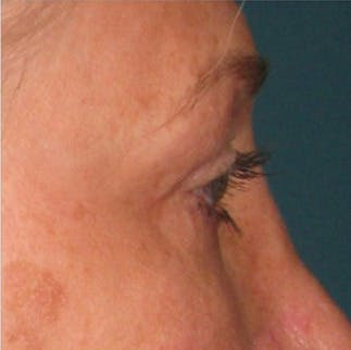 Ultherapy Gallery - Patient 39199835 - Image 1